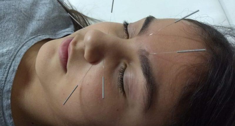 A MEDICINA CHINESA alivia a rinite alérgica e é mais eficaz do que um spray nasal com corticosteróide e anti-histamínico oral.