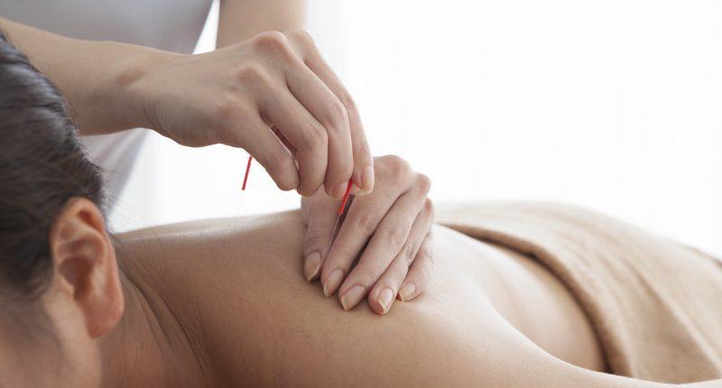 Fisioterapia e acupuntura podem ajudar no tratamento da osteoartrite?