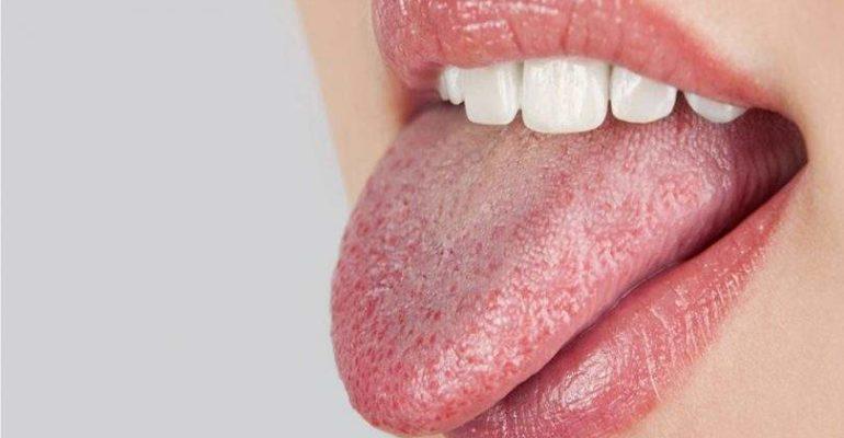 Acupuntura reduzindo a xerostomia e hipofluxo salivar